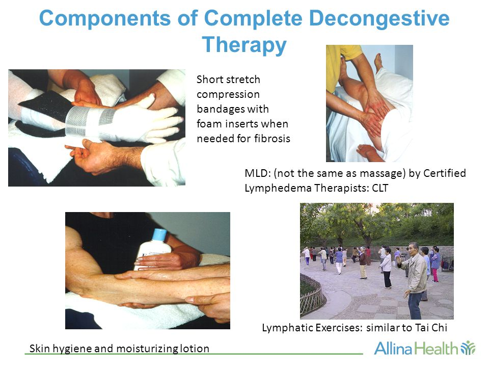 Components of Complete Decongestive Therapy Short stretch compression bandages with foam inserts when needed for fibrosis MLD: (not the same as massag