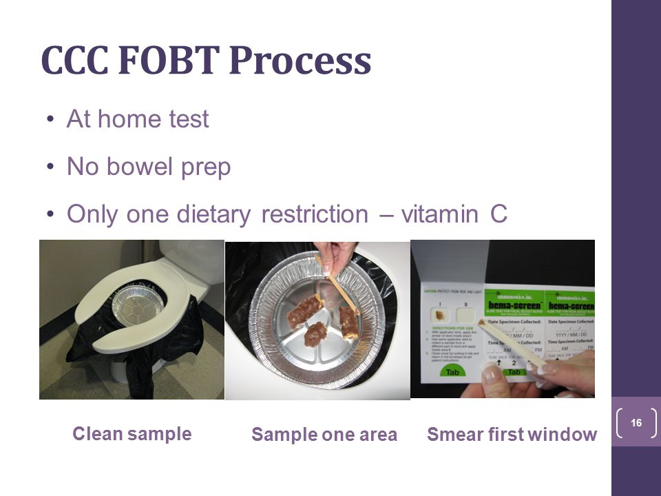 CCC FOBT Process At home test No bowel prep Only one dietary restriction – vitamin C Clean sample Sample one areaSmear first window 16
