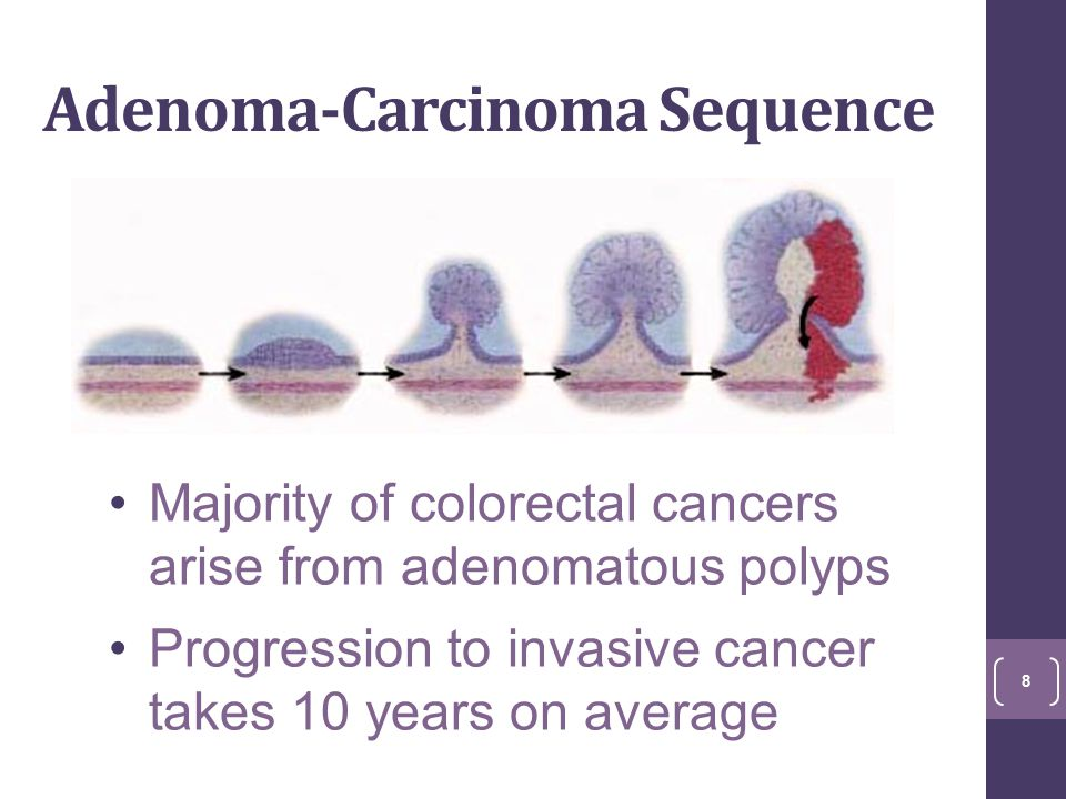 Adenoma-Carcinoma Sequence Majority of colorectal cancers arise from adenomatous polyps Progression to invasive cancer takes 10 years on average 8