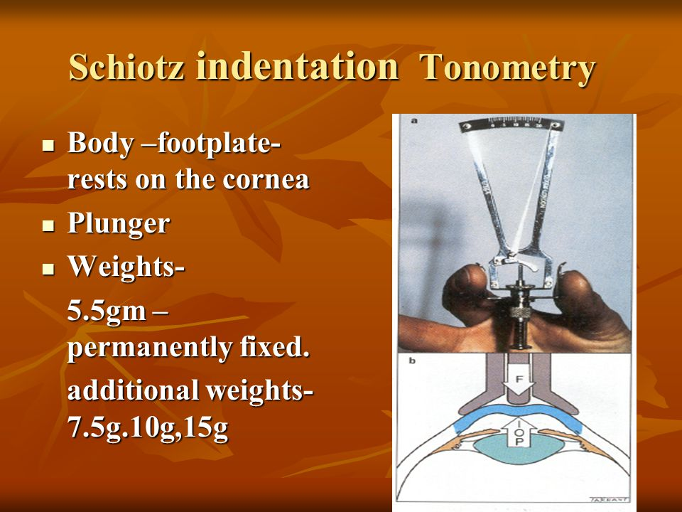 Schiotz indentation Tonometry Body –footplate- rests on the cornea Body –footplate- rests on the cornea Plunger Plunger Weights- Weights- 5.5gm – perm