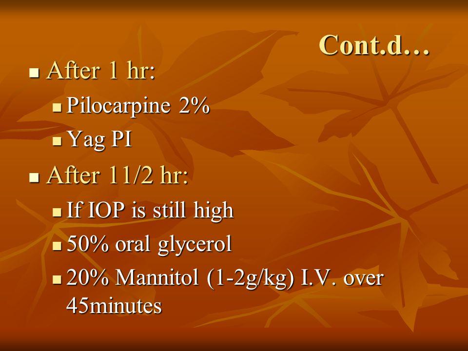 Cont.d… After 1 hr: After 1 hr: Pilocarpine 2% Pilocarpine 2% Yag PI Yag PI After 11/2 hr: After 11/2 hr: If IOP is still high If IOP is still high 50