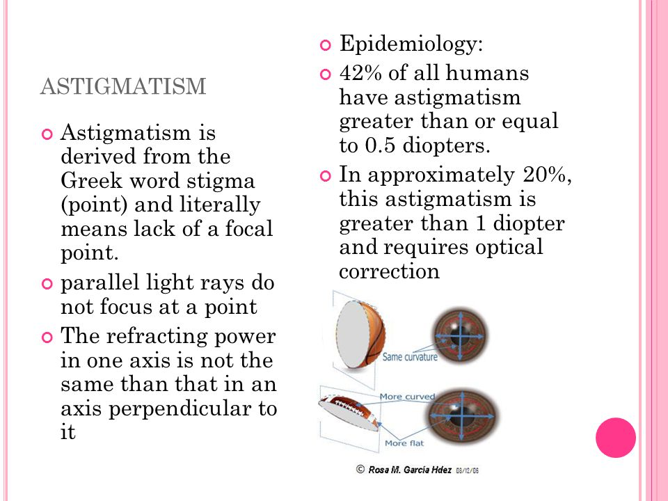 ASTIGMATISM Astigmatism is derived from the Greek word stigma (point) and literally means lack of a focal point. parallel light rays do not focus at a