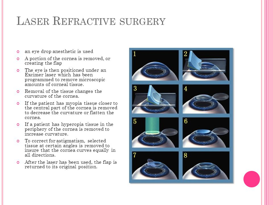 L ASER R EFRACTIVE SURGERY an eye drop anesthetic is used A portion of the cornea is removed, or creating the flap The eye is then positioned under an