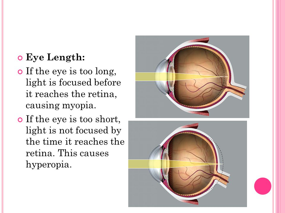 Curvature of the Cornea: If the cornea is not perfectly spherical, then the image is refracted or focused irregularly to create a condition called astigmatism.