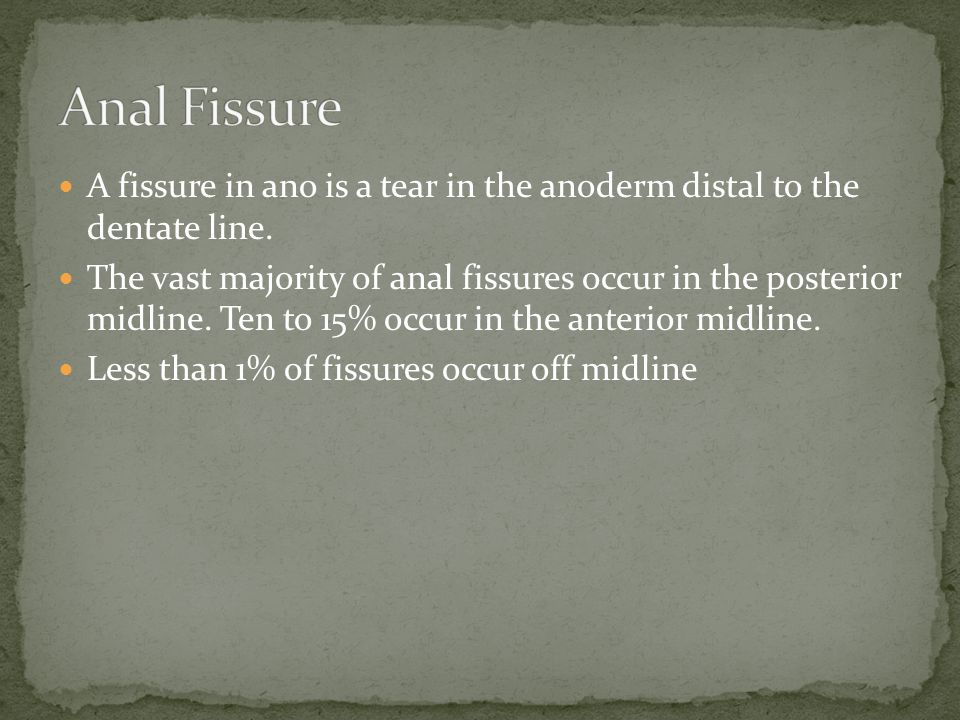 A fissure in ano is a tear in the anoderm distal to the dentate line.