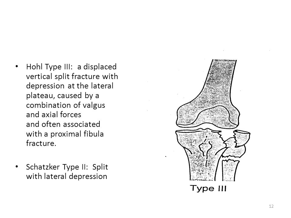 Hohl Type III: a displaced vertical split fracture with depression at the lateral plateau, caused by a combination of valgus and axial forces and ofte
