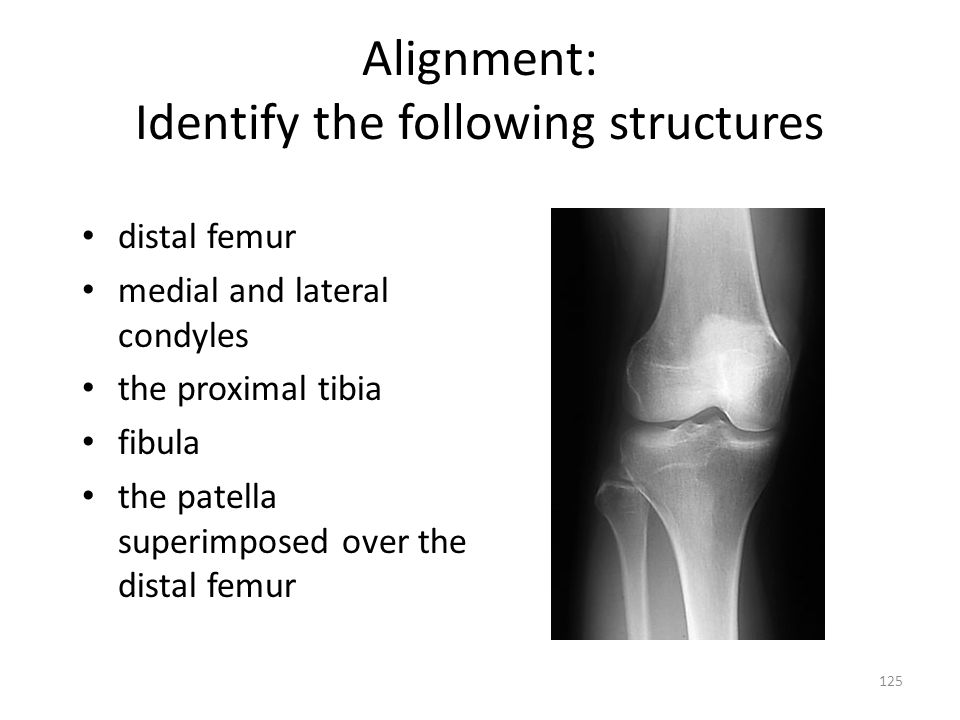 Alignment: Identify the following structures distal femur medial and lateral condyles the proximal tibia fibula the patella superimposed over the dist