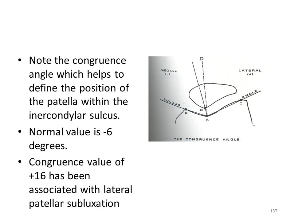 Note the congruence angle which helps to define the position of the patella within the inercondylar sulcus. Normal value is -6 degrees. Congruence val