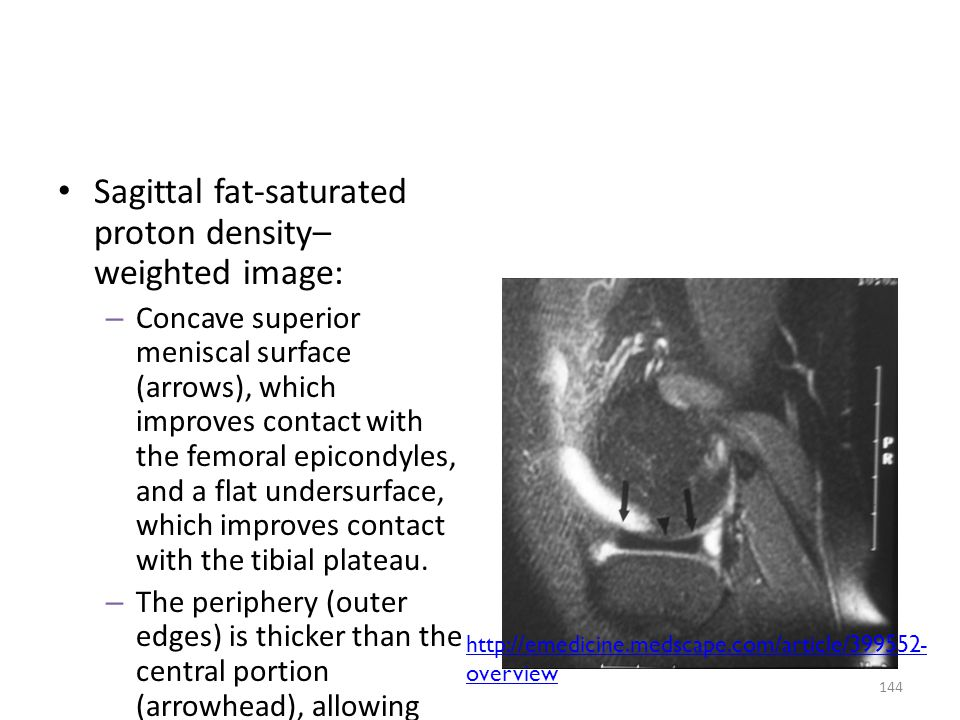 Sagittal fat-saturated proton density– weighted image: – Concave superior meniscal surface (arrows), which improves contact with the femoral epicondyl