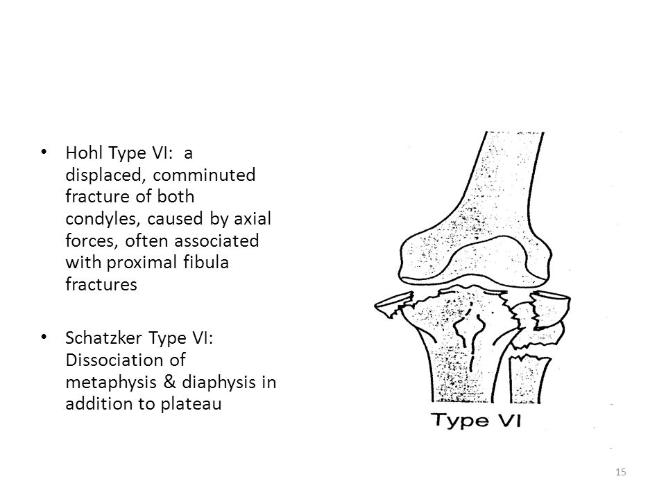 Hohl Type VI: a displaced, comminuted fracture of both condyles, caused by axial forces, often associated with proximal fibula fractures Schatzker Typ