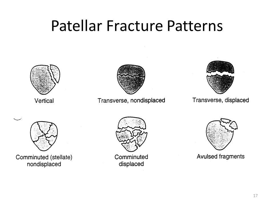 Patellar Fracture Patterns 17