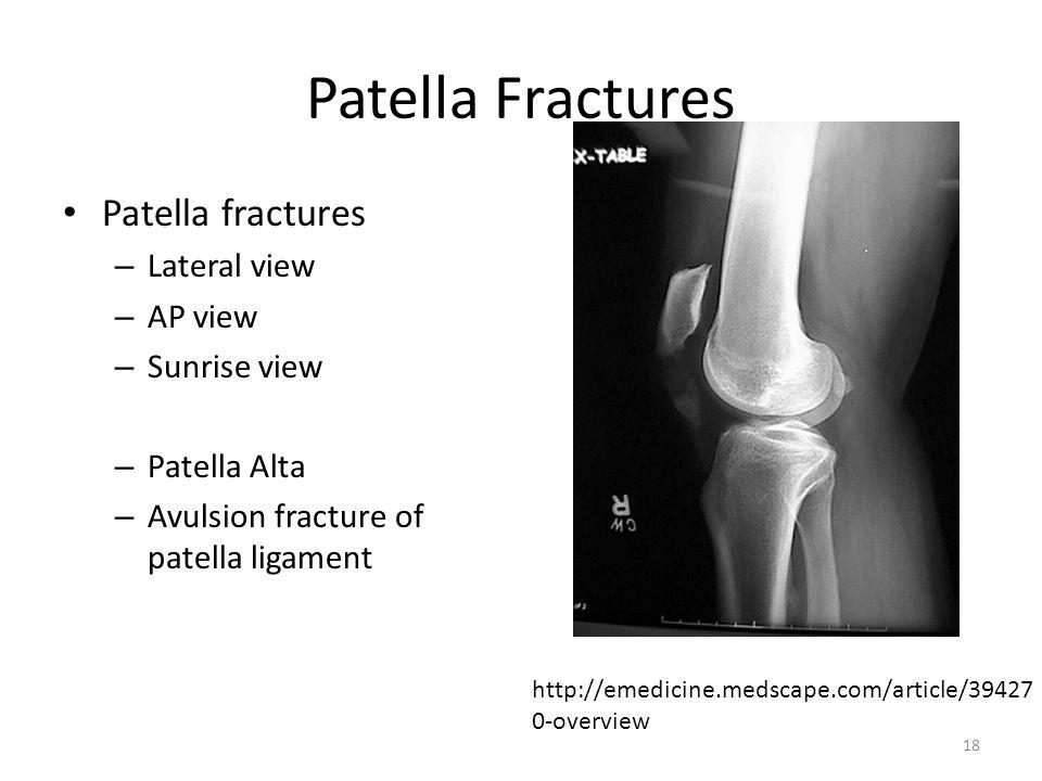 Patella Fractures Patella fractures – Lateral view – AP view – Sunrise view – Patella Alta – Avulsion fracture of patella ligament http://emedicine.me