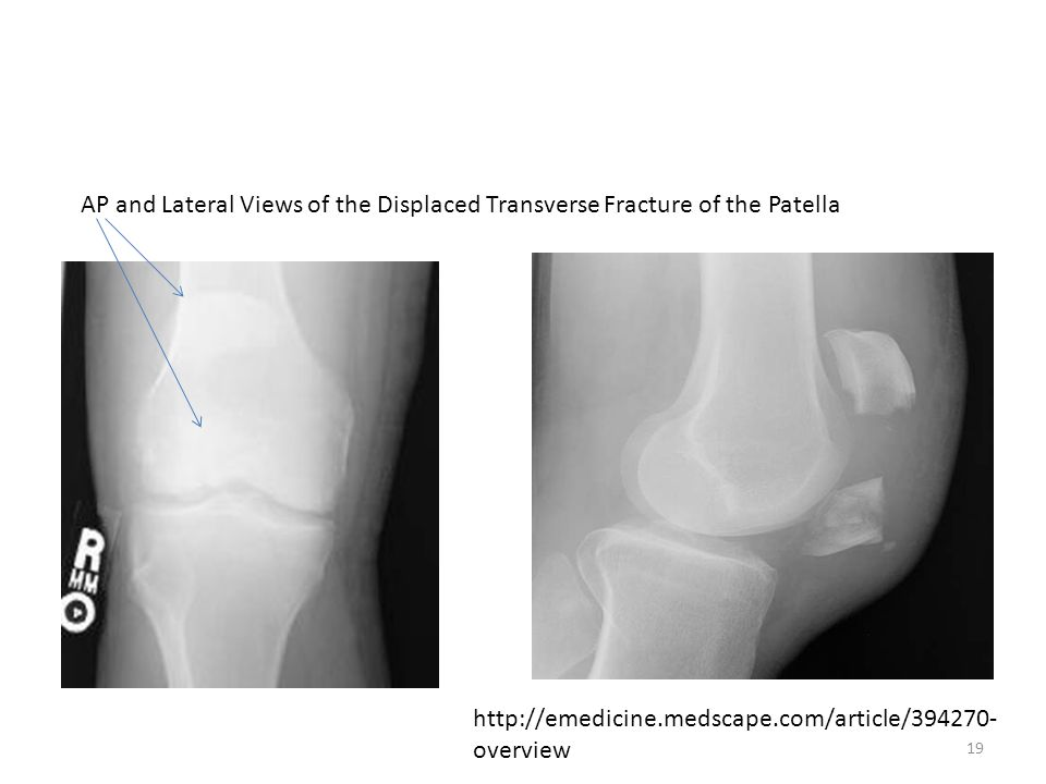 AP and Lateral Views of the Displaced Transverse Fracture of the Patella http://emedicine.medscape.com/article/394270- overview 19