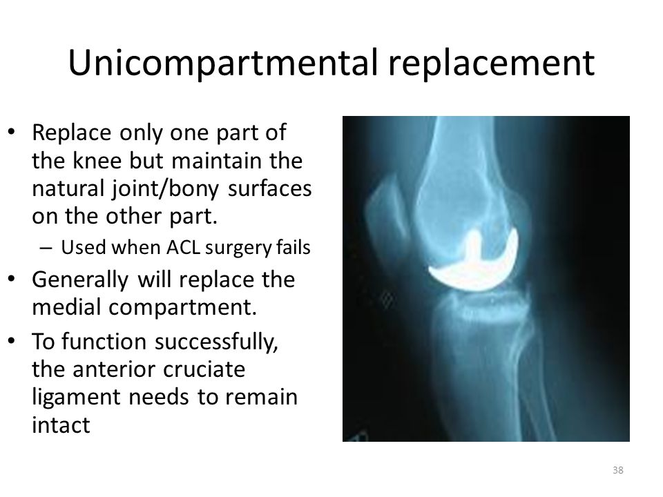 Unicompartmental replacement Replace only one part of the knee but maintain the natural joint/bony surfaces on the other part. – Used when ACL surgery