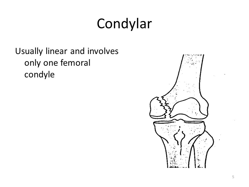Condylar Usually linear and involves only one femoral condyle 5