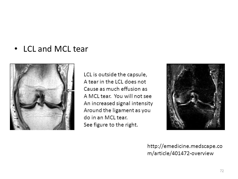 LCL and MCL tear http://emedicine.medscape.co m/article/401472-overview LCL is outside the capsule, A tear in the LCL does not Cause as much effusion
