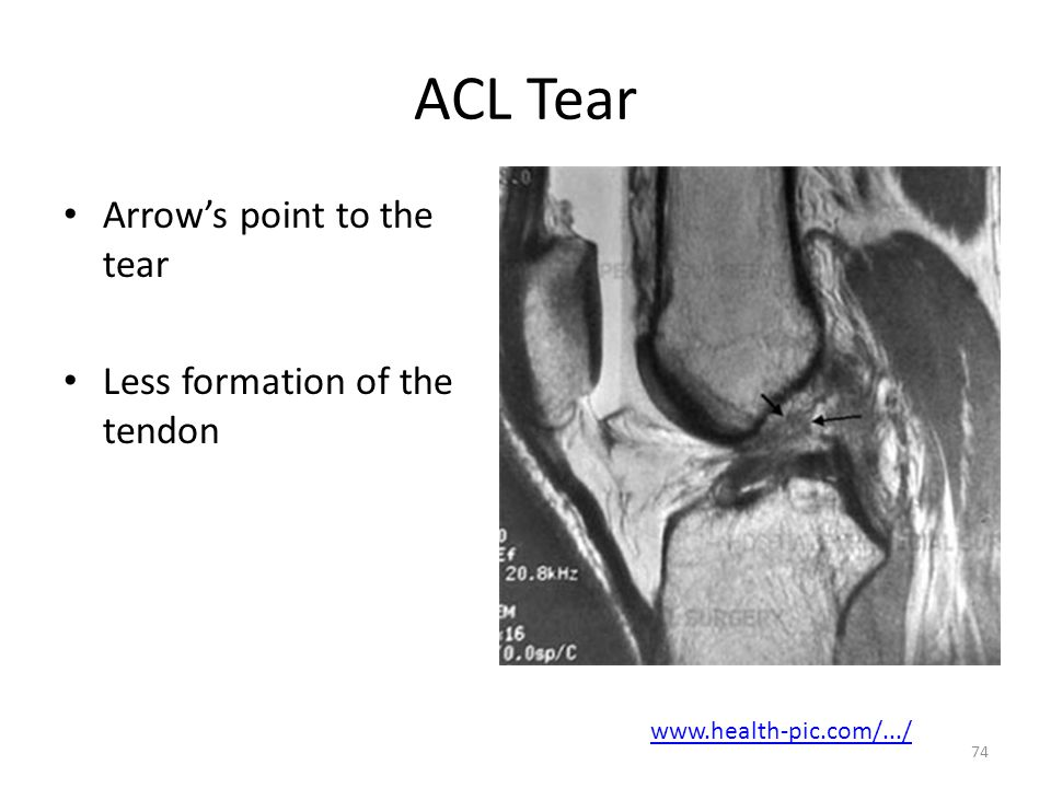ACL Tear Arrow's point to the tear Less formation of the tendon www.health-pic.com/.../ 74