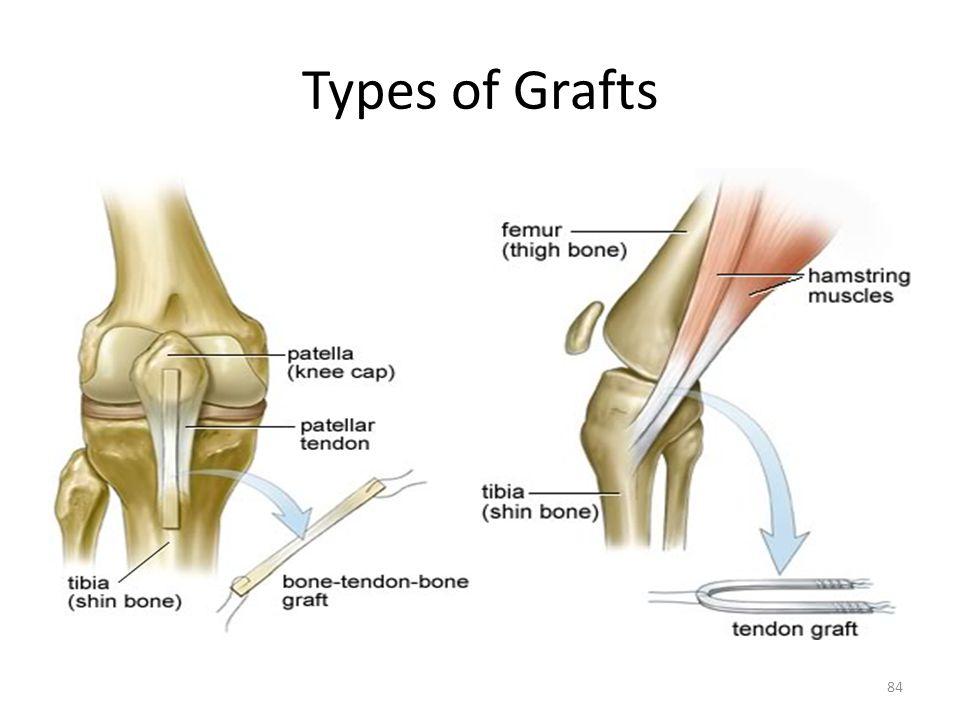 Types of Grafts 84