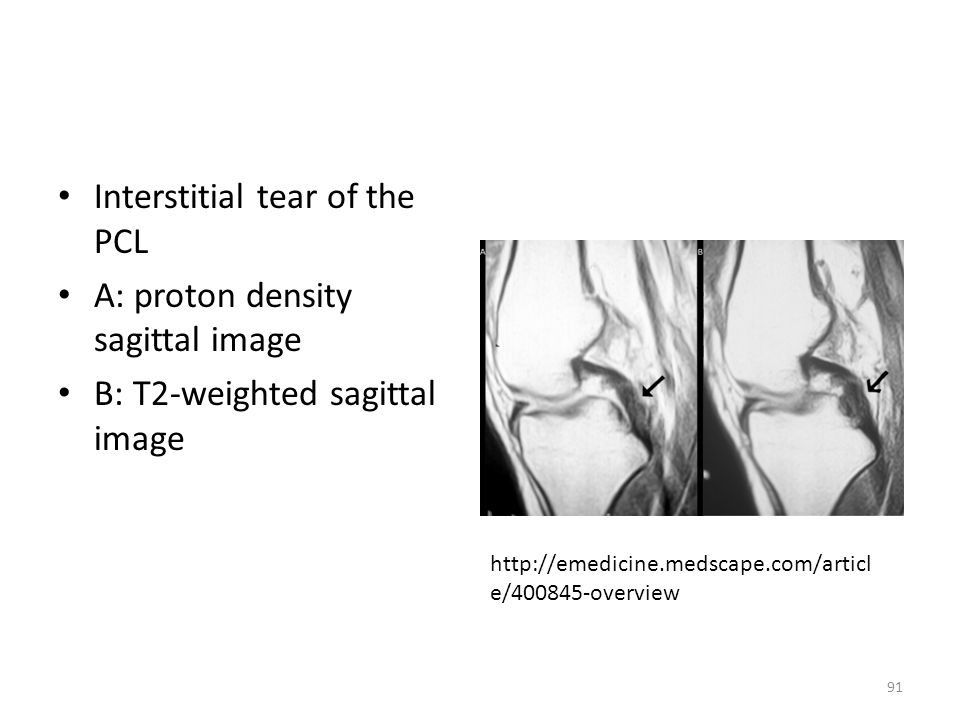 Interstitial tear of the PCL A: proton density sagittal image B: T2-weighted sagittal image http://emedicine.medscape.com/articl e/400845-overview 91