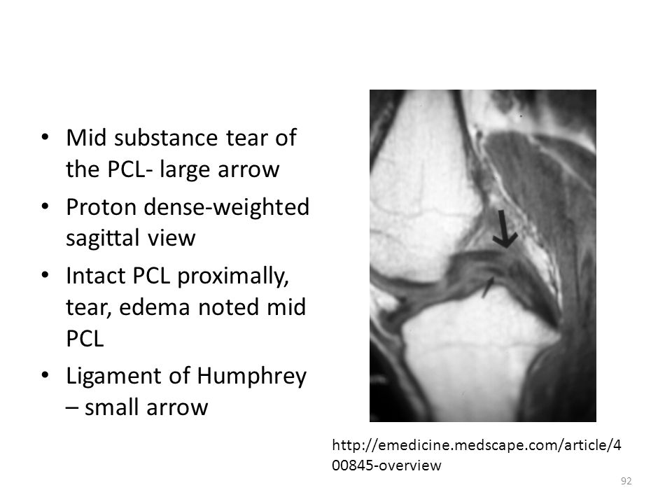 Mid substance tear of the PCL- large arrow Proton dense-weighted sagittal view Intact PCL proximally, tear, edema noted mid PCL Ligament of Humphrey –