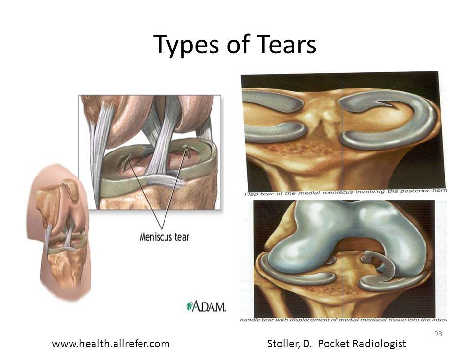 Types of Tears Stoller, D. Pocket Radiologistwww.health.allrefer.com 98