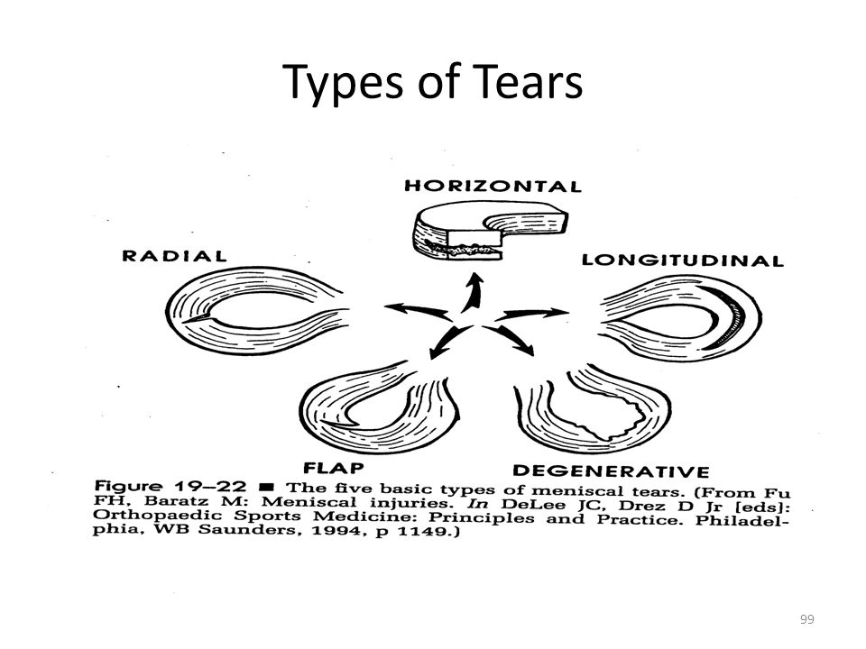 Types of Tears 99