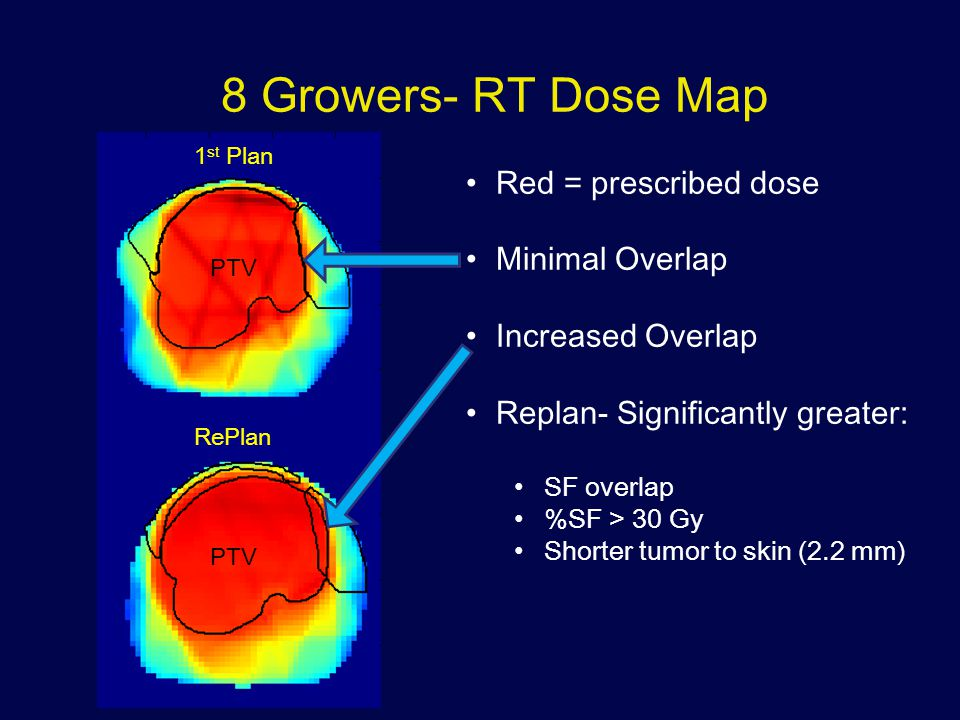 8 Growers- RT Dose Map PTV 1 st Plan RePlan PTV Red = prescribed dose Minimal Overlap Increased Overlap Replan- Significantly greater: SF overlap %SF