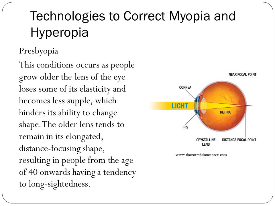 Technologies to Correct Myopia and Hyperopia Presbyopia This conditions occurs as people grow older the lens of the eye loses some of its elasticity a