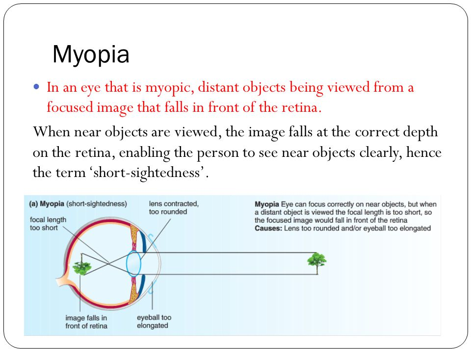 Myopia In an eye that is myopic, distant objects being viewed from a focused image that falls in front of the retina. When near objects are viewed, th
