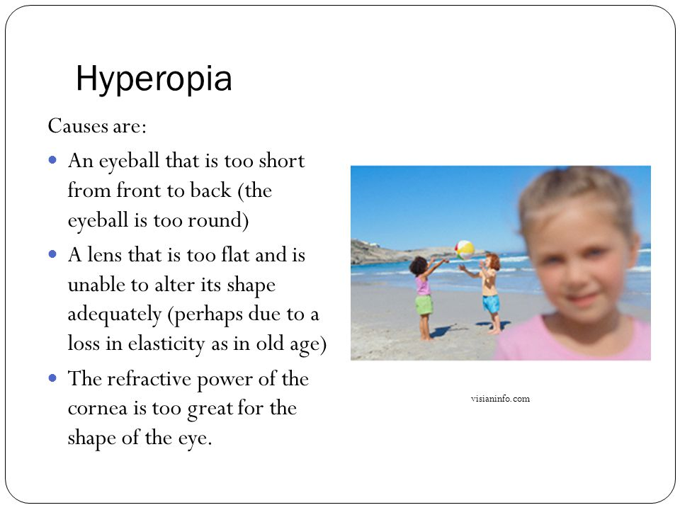 Hyperopia Causes are: An eyeball that is too short from front to back (the eyeball is too round) A lens that is too flat and is unable to alter its sh