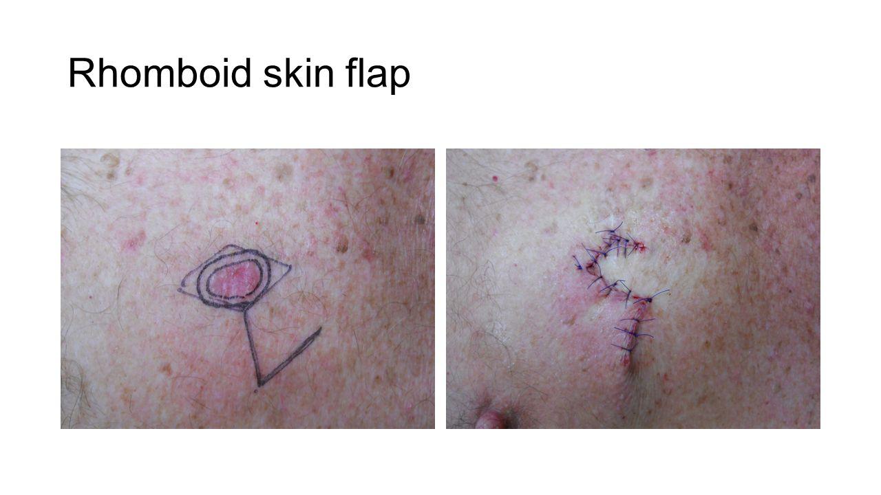 Rhomboid skin flap