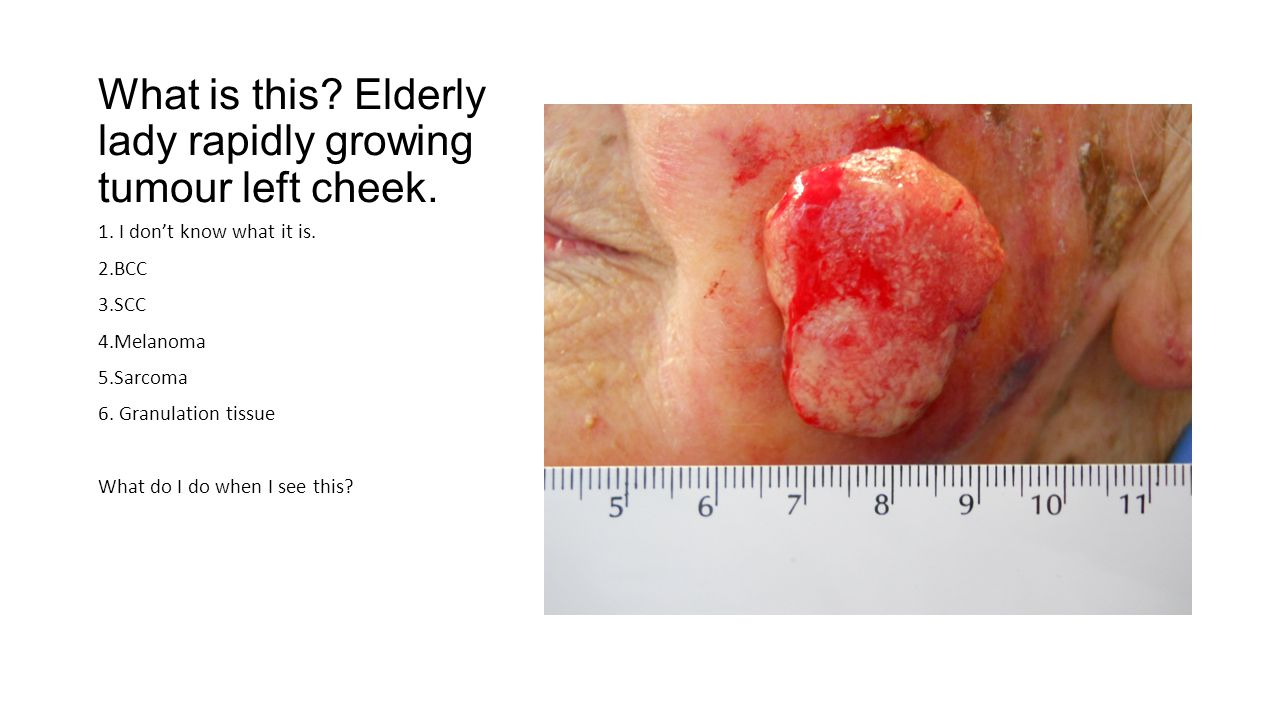 What is this.Elderly man, ulcerating lesion growing on finger.
