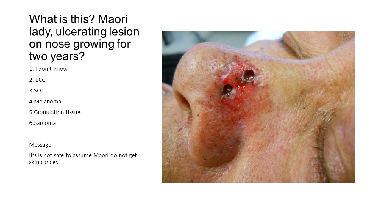 What is this. Maori lady, ulcerating lesion on nose growing for two years.