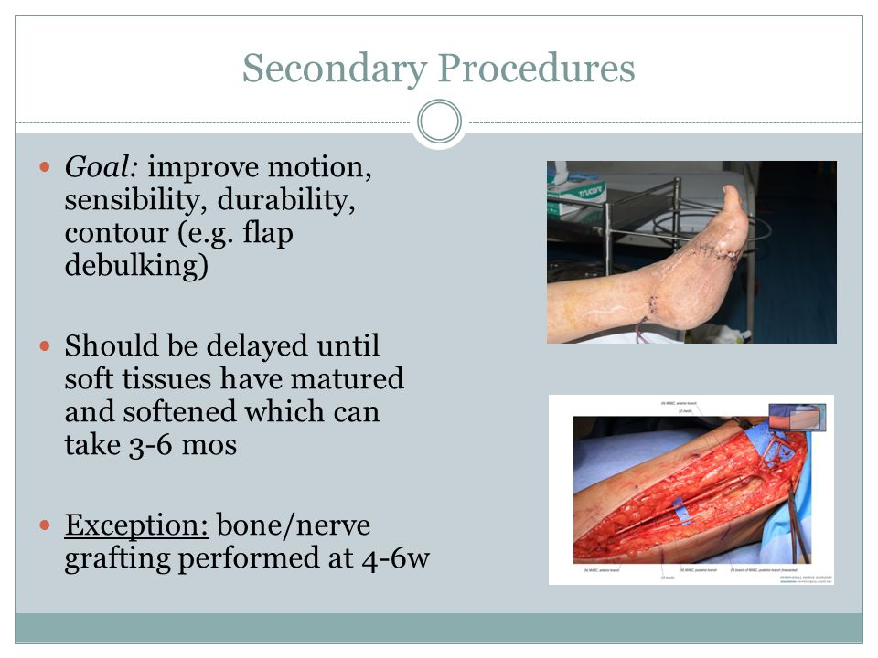 Secondary Procedures Goal: improve motion, sensibility, durability, contour (e.g.