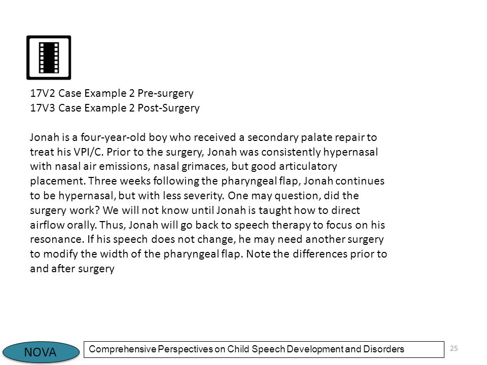 NOVA Comprehensive Perspectives on Child Speech Development and Disorders 25 17V2 Case Example 2 Pre-surgery 17V3 Case Example 2 Post-Surgery Jonah is a four-year-old boy who received a secondary palate repair to treat his VPI/C.