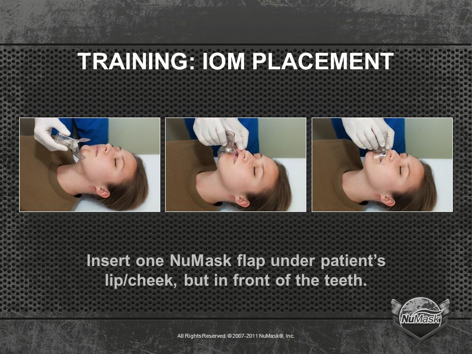 TRAINING: IOM PLACEMENT Insert one NuMask flap under patient's lip/cheek, but in front of the teeth.