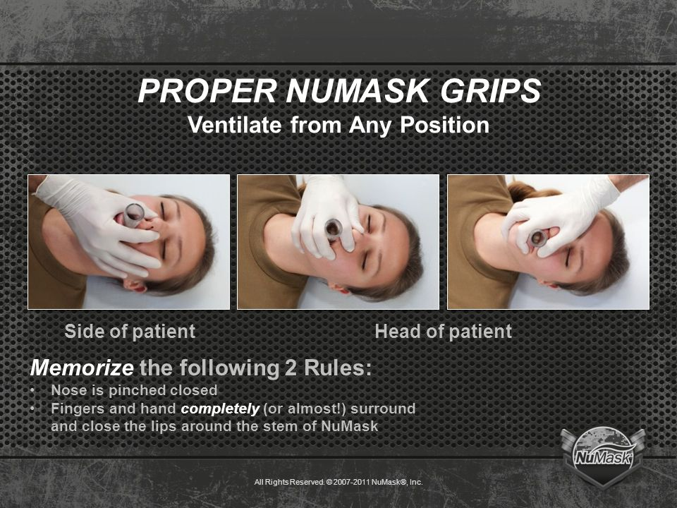 PROPER NUMASK GRIPS Ventilate from Any Position Side of patientHead of patient Memorize the following 2 Rules: Nose is pinched closed Fingers and hand completely (or almost!) surround and close the lips around the stem of NuMask All Rights Reserved.