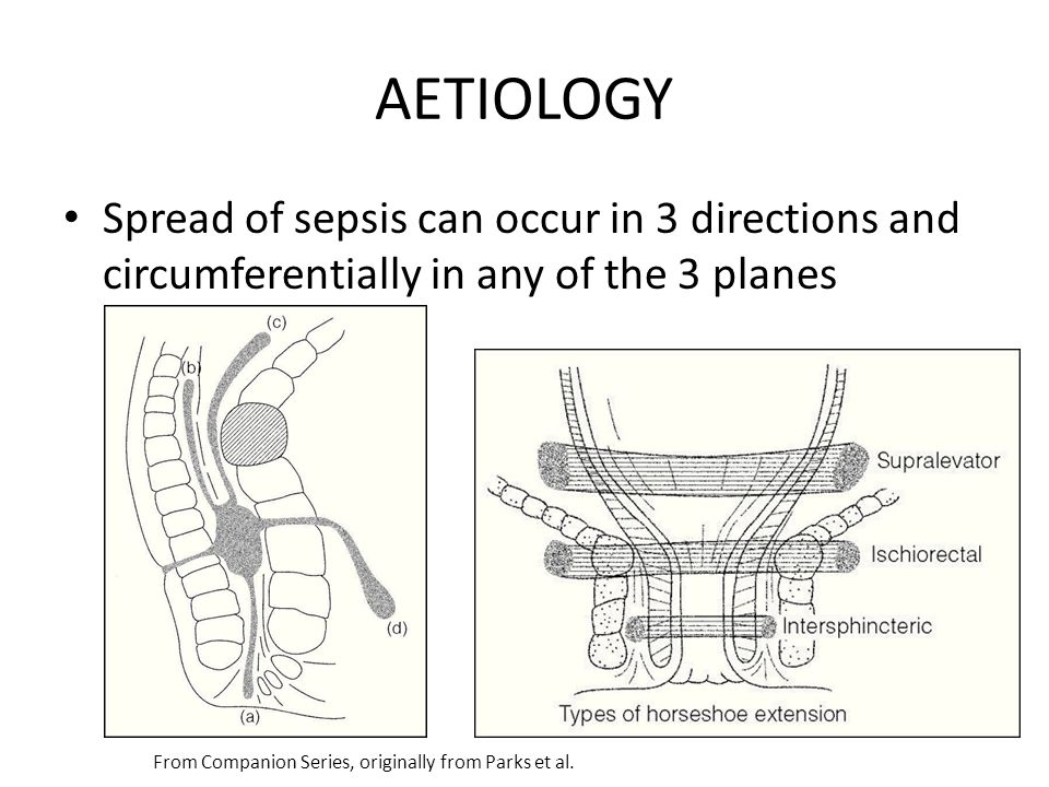 AETIOLOGY Spread of sepsis can occur in 3 directions and circumferentially in any of the 3 planes From Companion Series, originally from Parks et al.