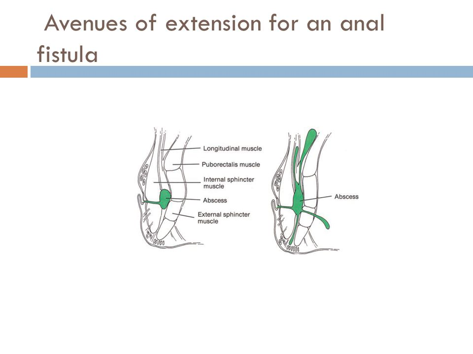 Avenues of extension for an anal fistula