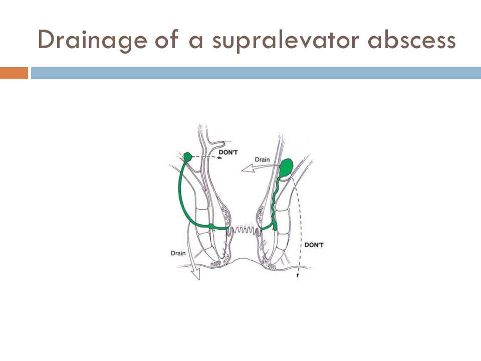 Drainage of a supralevator abscess