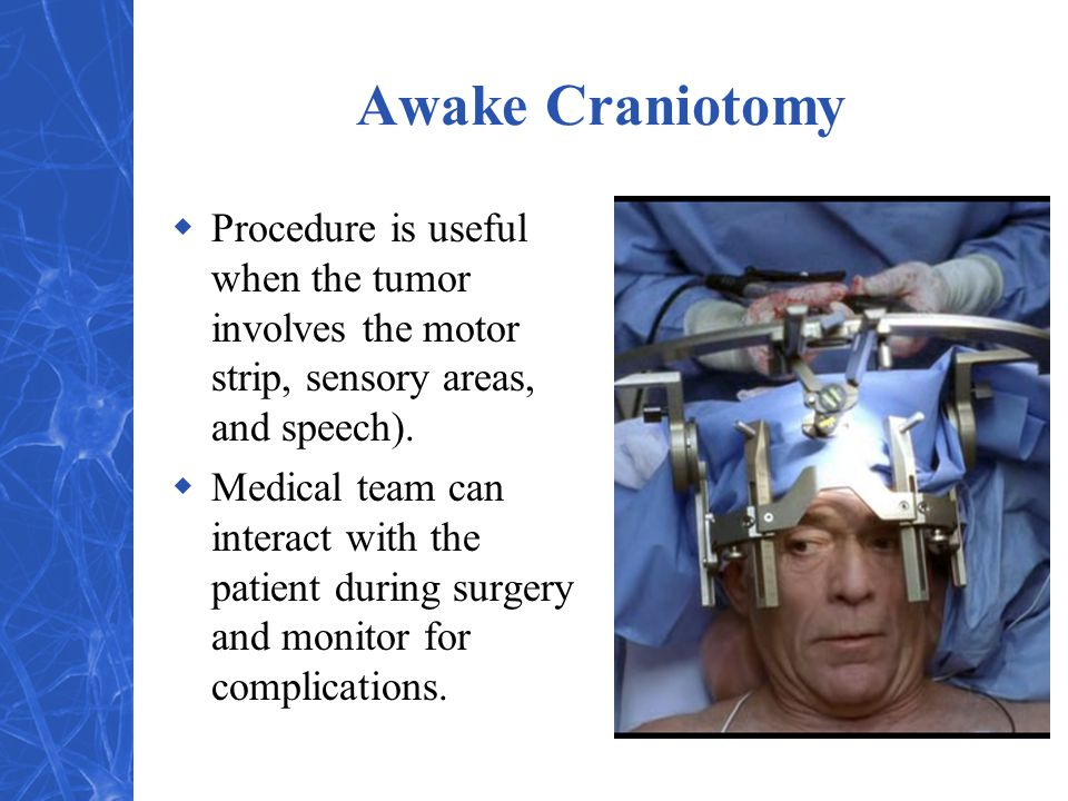 Awake Craniotomy  Procedure is useful when the tumor involves the motor strip, sensory areas, and speech).  Medical team can interact with the patie