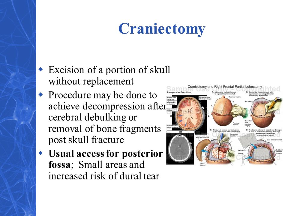 Craniectomy  Excision of a portion of skull without replacement  Procedure may be done to achieve decompression after cerebral debulking or removal