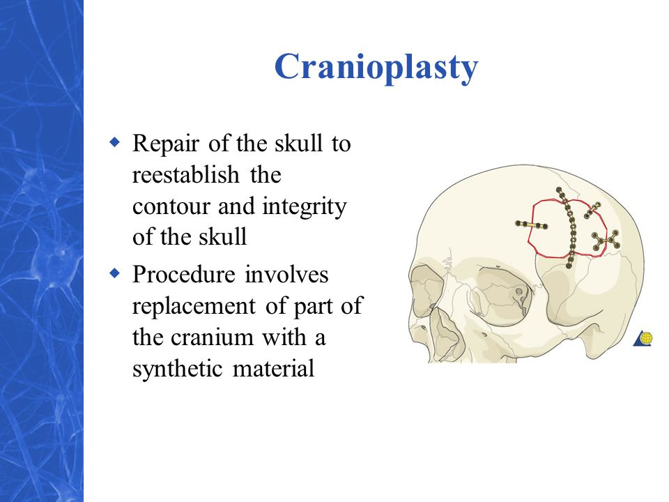 Cranioplasty  Repair of the skull to reestablish the contour and integrity of the skull  Procedure involves replacement of part of the cranium with