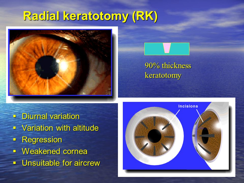 Acquired Colour Vision Defects  Predominantly affects blue / green discrimination  Disease – Macular blue / yellow – Optic nerve red / green  Drugs – Inc alcohol, tobacco and OCP – 'Viagra blue'  Old age
