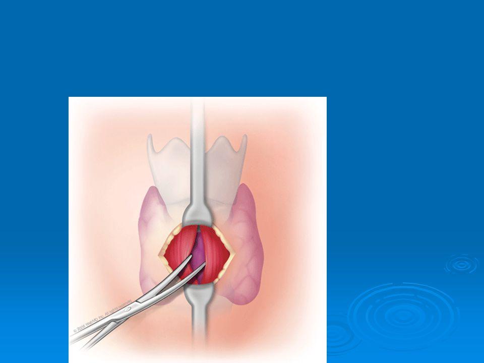 Early Complications  Loss of Airway  False Passage  Decannulation  Bleeding  Mucus Plug  Pneumomediasteum  Pneumothorax  Infection  Negative Pressure Pulmonary Edema