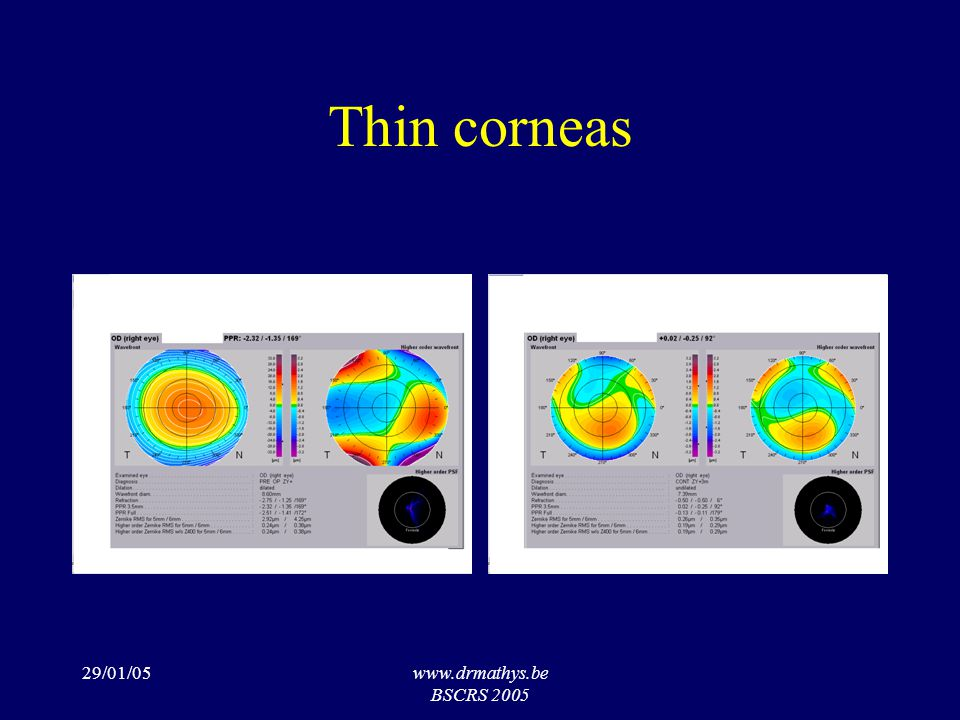 29/01/05www.drmathys.be BSCRS 2005 Thin corneas
