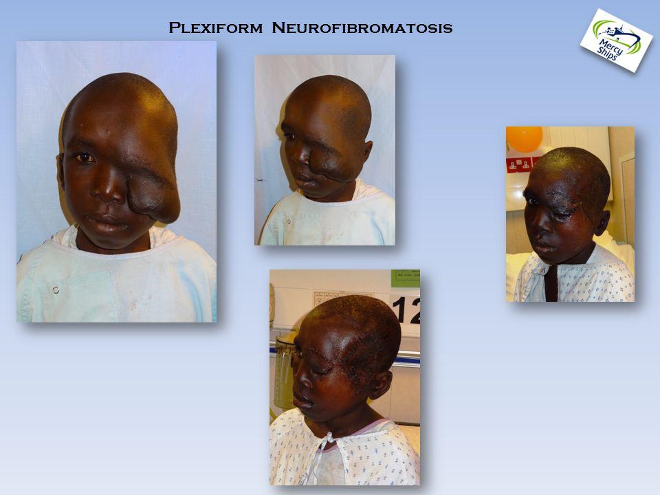 Plexiform Neurofibromatosis