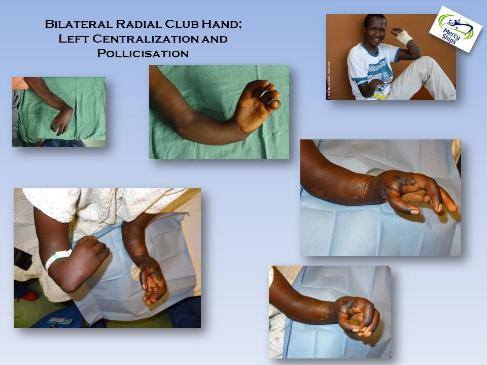Bilateral Radial Club Hand; Left Centralization and Pollicisation
