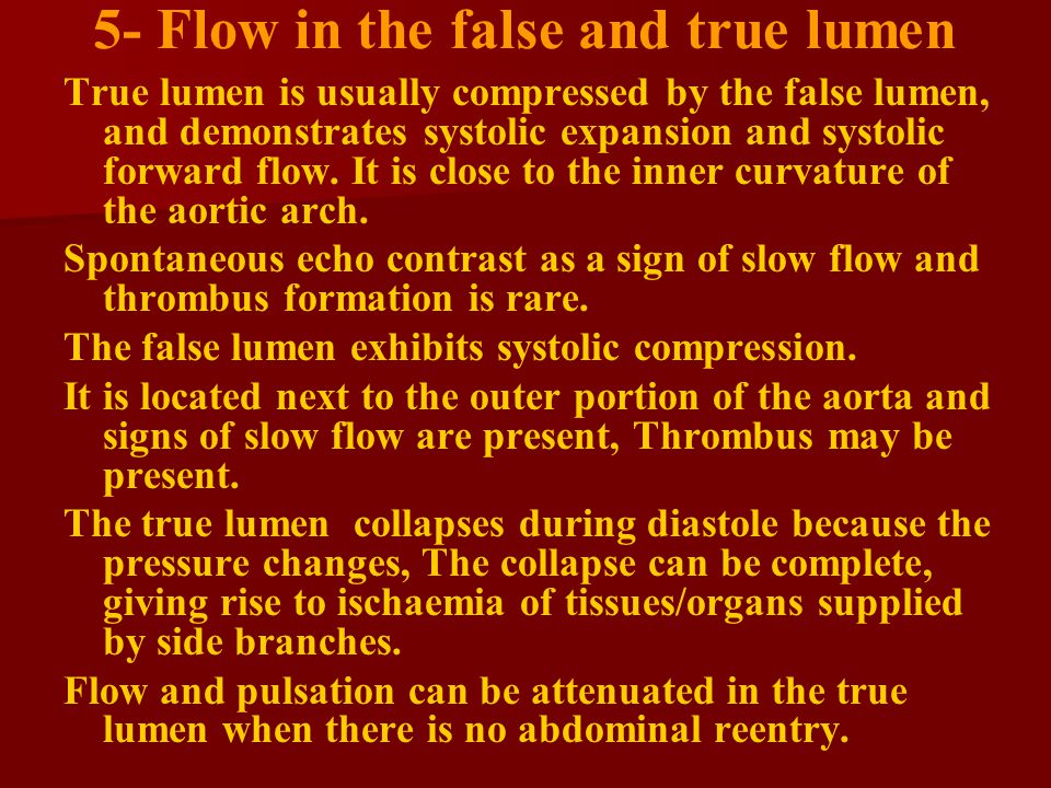5- Flow in the false and true lumen True lumen is usually compressed by the false lumen, and demonstrates systolic expansion and systolic forward flow.
