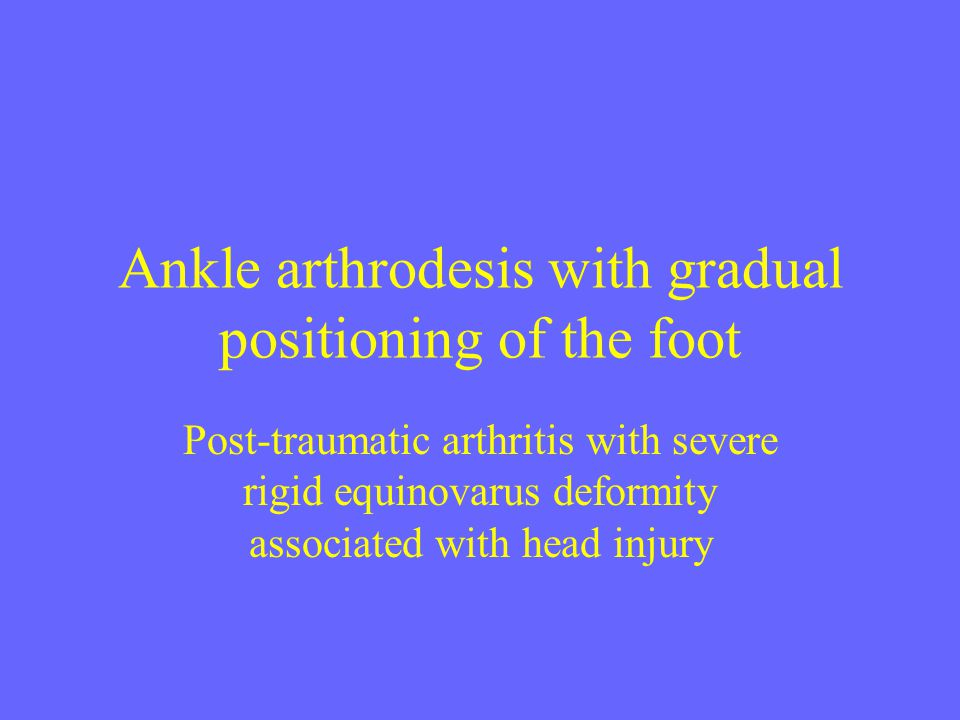 Ankle arthrodesis with gradual positioning of the foot Post-traumatic arthritis with severe rigid equinovarus deformity associated with head injury